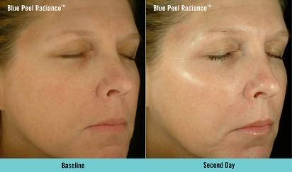 Obagi Blue Peel Radiance before and after, chemical peel
