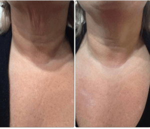 skintech radiofrequency before and after picture