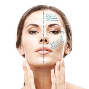 3D-Lipo HIFU Skin Tightening non surgical face lift