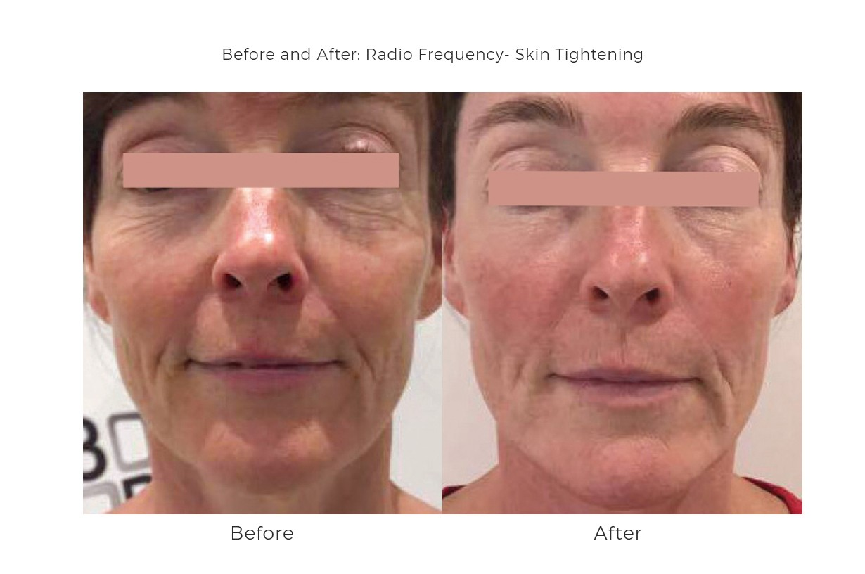 Skin Tightening, Radio Frequency for the body and face